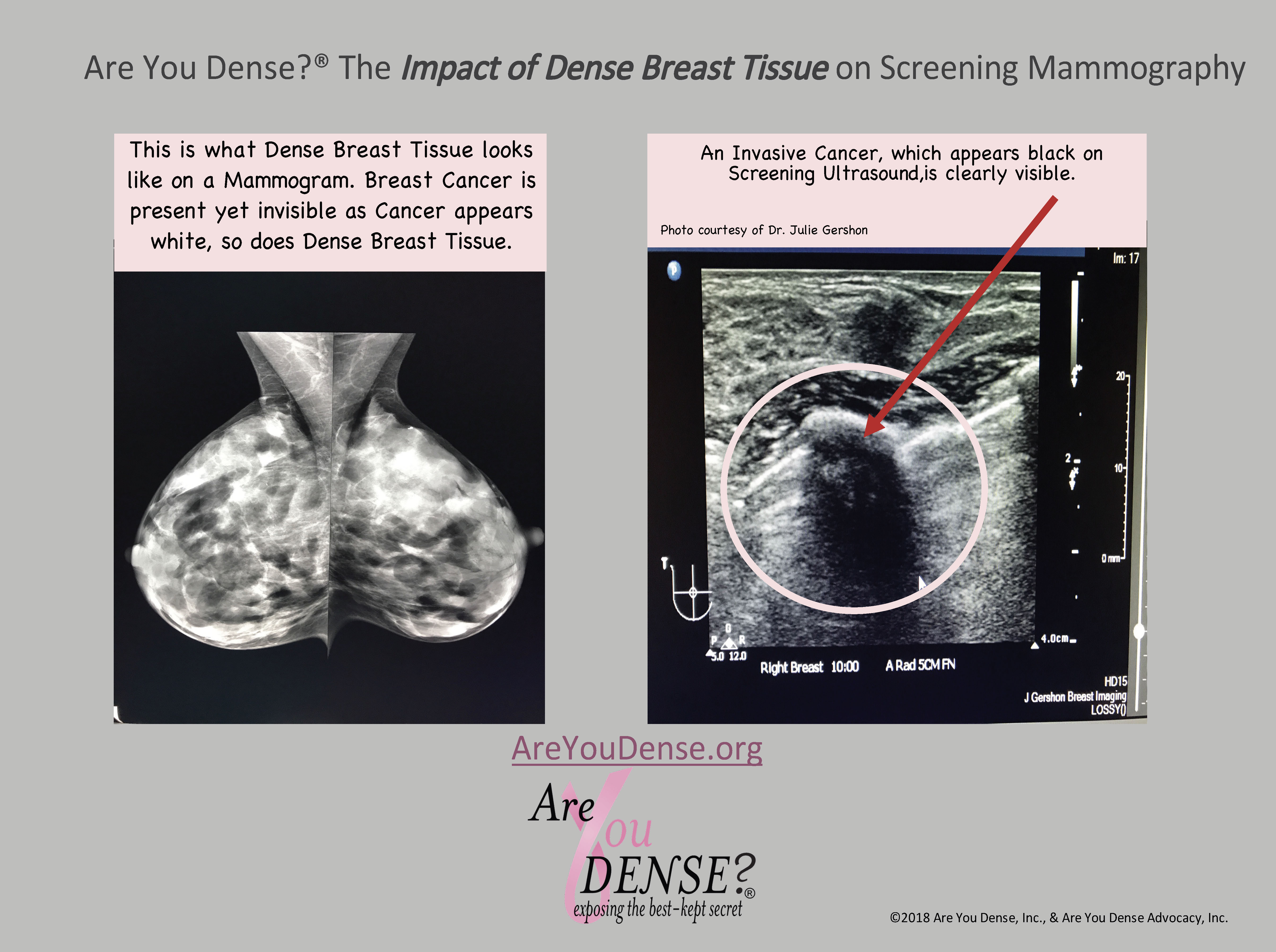 Are You Dense Handy Patient Guide To Screening Options For
